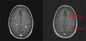 Follow-up MRI scan showing either complete response or very good partial response to treated areas (arrows).