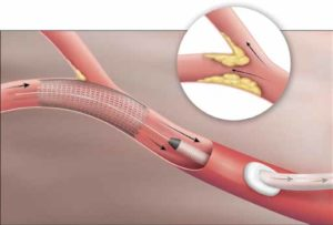 , New Procedure Lowers Stroke Risk and Recovery Time for Carotid Stenosis