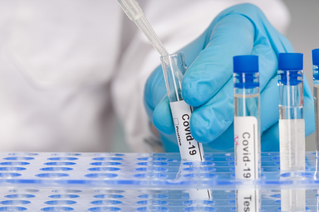 hand in blue gloves working with test tubes at virus analysis in a medical lab